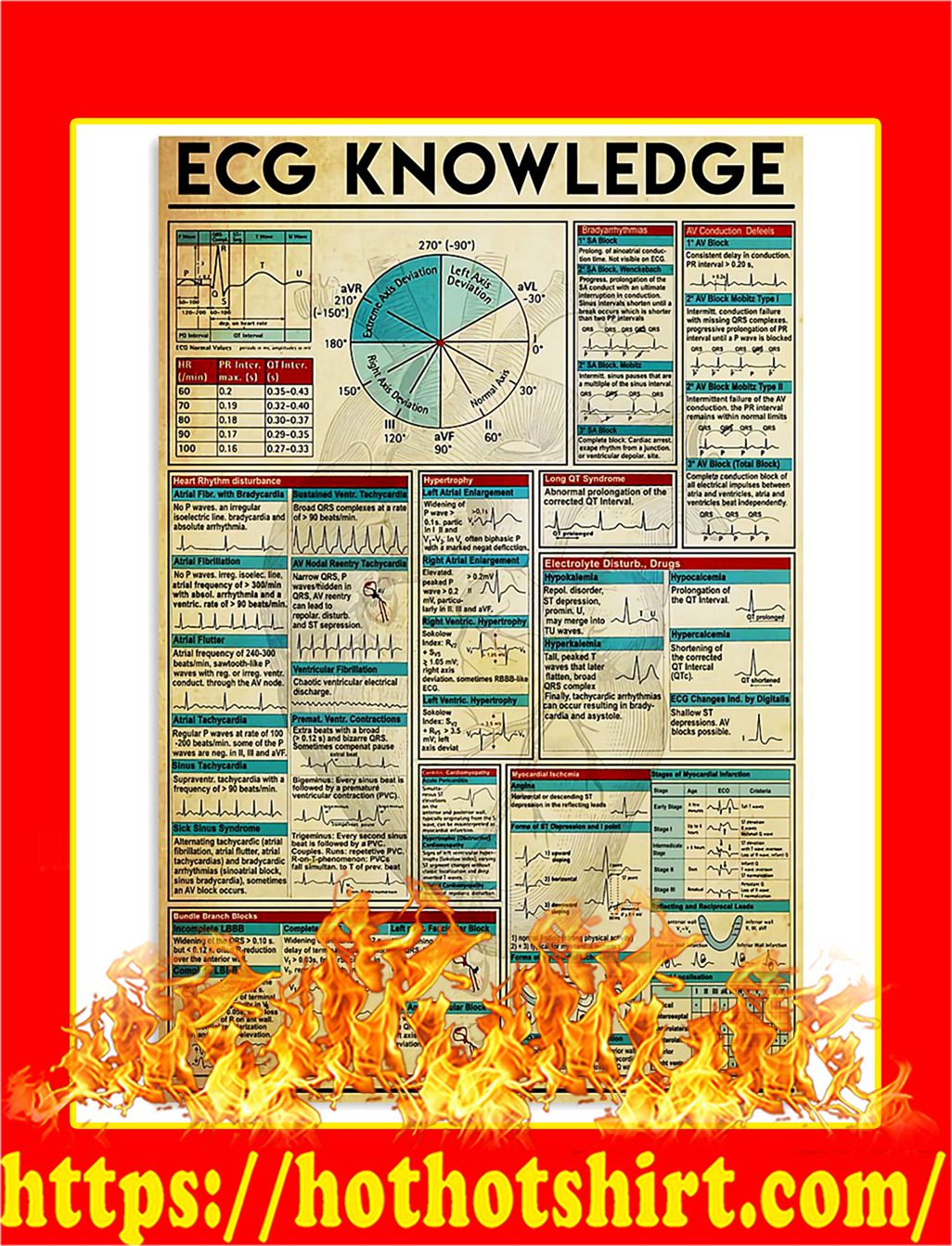 ECG Knowledge Poster - A3